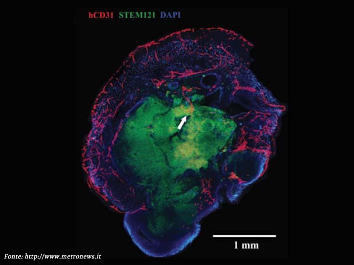 È un cervello mini Ma umano – Notizia da metronews on line